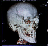 Skull, CT-scan reconstruction, anatomy stock photo