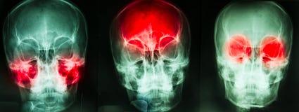 Skull film Royalty Free Stock Photography