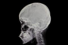 Skull film. Diagnostic xray film of human skull Royalty Free Stock Images