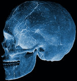 Skull head side x ray Royalty Free Stock Image