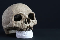 Skull And Jaw Royalty Free Stock Photography