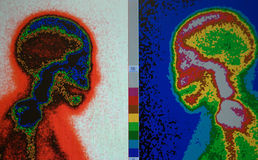 Skull nuclear scan. Different sites and colors for imaging of bones of skull in nuclear medicine scanning practice ,useful for radiologist royalty free stock image