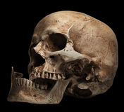 Skull-open mouth, broken jaw Royalty Free Stock Photos