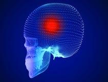 Skull, pain, headaches, neurons, synapses, neural network, brain, neuron circuit, degenerative diseases, Parkinson's. Skull, pain, headaches, neurons Stock Photography