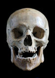 Skull of the person Royalty Free Stock Images