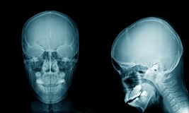 Skull x-ray AP and lateral view Stock Photos