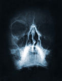 Skull x-ray image. Front face skull x-ray image stock photography