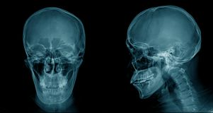 Skull x-ray image, head injury x-ray. For lession dignosis stock photo