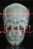 Skull x-rays image and Lifeline of EKG Stock Photo