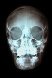 Skull X-ray Stock Photos