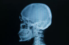 Skull x-rays image Royalty Free Stock Images