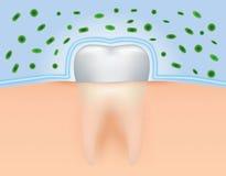 Skydda tänder från bakterier Arkivbild