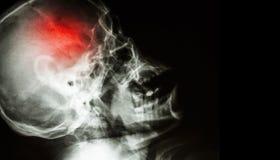 slag filmröntgenstraal van menselijke schedel zijmening met slag leeg gebied bij rechterkant Royalty-vrije Stock Afbeelding