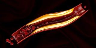 Slagader met realistische cholesterolopbouw Stock Foto