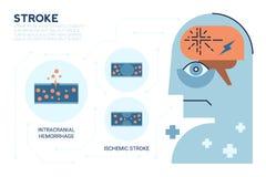 Slaglängd Brain Disease stock illustrationer