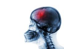 slaglängd cerebrovascular olycka Filma röntgenstrålen av den mänskliga skallen och den cervikala ryggen royaltyfri foto
