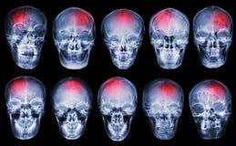 slaglängd cerebrovascular olycka Uppsättning av filmröntgenstråleskallen arkivfoton