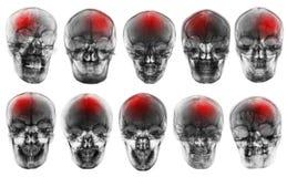 slaglängd cerebrovascular olycka Uppsättning av filmröntgenstråleskallen royaltyfria foton