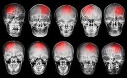 slaglängd cerebrovascular olycka Uppsättning av filmröntgenstråleskallen royaltyfria bilder