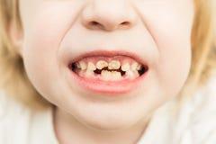 Slechte tanden Royalty-vrije Stock Afbeeldingen
