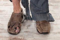 Slechte voeten Royalty-vrije Stock Foto's