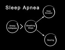 Sleep Apnea. From airway collapse to snoring Royalty Free Stock Photo