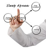Sleep Apnea. Presenting Diagram of Sleep Apnea royalty free stock image