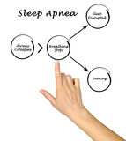 Sleep Apnea. Presenting Diagram of Sleep Apnea Royalty Free Stock Photo