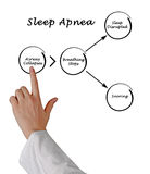 Sleep Apnea. Presenting Diagram of Sleep Apnea stock photo