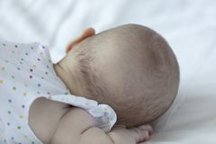 Baby girl with bold back of the head. Sleeping baby girl turned with her bold back towards the camera stock images