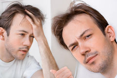 Sleepy man suffers from hangover Royalty Free Stock Photos