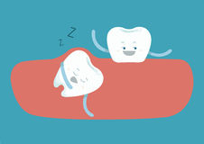 Sleepy tooth of impacted tooth Royalty Free Stock Photo