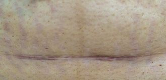 Slim and fit figure after the longitudinal caesarean section. Scar after a Caesarean section, Bikini line. Closeup of a scar on t stock photography