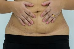 Slim and fit figure after the longitudinal caesarean section. Scar after a Caesarean section, Bikini line. stock photography