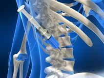 Slip injection. 3d rendered illustration of a human spine with an injection Royalty Free Stock Photo