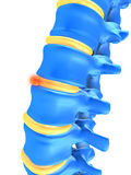 Slipped disc. 3d rendered anatomy illustration of a slipped disc Royalty Free Stock Images