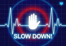 SLOW DOWN written on blue heart rate monitor. Expressing warning on heart condition, health hazard from too much stress Stock Photo