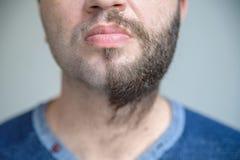 Sluit omhoog half geschoren baard stock foto