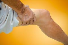 Sluit omhoog het lijden van aan oude mannelijke pijn Stock Foto's
