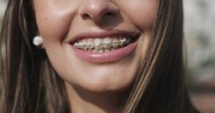 Sluit omhoog jonge meisjesmond met steunen op tanden stock video