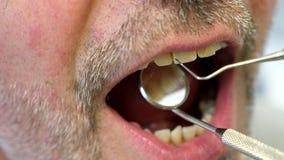 Sluit omhoog lengte van een patiëntenmond en een tandarts die zijn tanden controleren stock footage