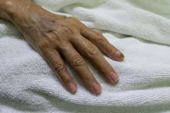 Sluit omhoog oude vrouwelijke hand van bejaarde patiënt met intraveneuze catheter voor injectiestop ter beschikking royalty-vrije stock afbeelding