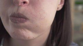 Sluit omhoog rosacea op het gezicht van de vrouw stock footage