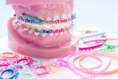 Sluit omhoog tandartshulpmiddelen en orthodontisch model royalty-vrije stock fotografie