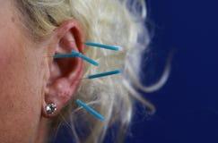 Sluit omhoog van menselijk vrouwelijk oor met blauwe naalden: Ooracupunctuur als vorm van alternatieve Chinese geneeskunde royalty-vrije stock afbeelding