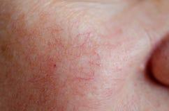 Sluit omhoog van menselijke gezichtshuid met vasculaire problemen stock foto