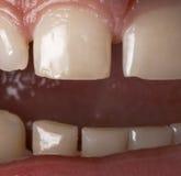 Sluit omhoog van menselijke tanden Royalty-vrije Stock Foto's