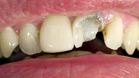 Sluit omhoog van mond met gebroken tand De mens toont holte voor behandeling stock footage