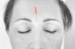 Sluit omhoog van vrouw met acupunctuurhulpmiddel in bijlage stock foto