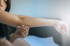 Sluit omhoog van vrouw met droge huid op elleboog en wapen, Lichaam en gezondheidszorgconcept stock afbeelding